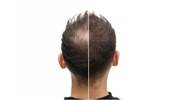 résultat greffe de cheveux