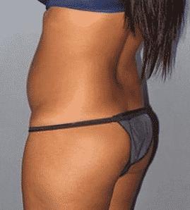 brazilian butt lift prix
